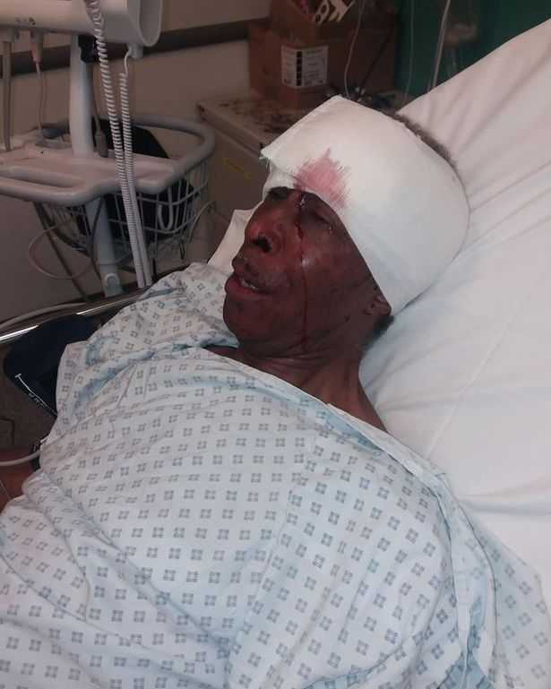 The man was left with severe injuries after the alleged assault