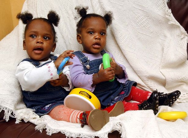 Miracle conjoined twins are separated but 'like sleeping as if still joined together'
