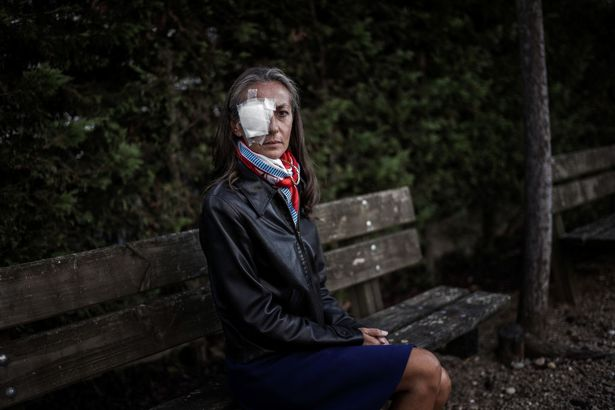 Frenchwoman Corine Remande, 49, poses on October 3, 2018 in Lyon after she said she was taking legal action against the golf Ryder Cup event's organisers after being hit and lost sight in her right eye on Friday's opening day, when Brooks Koepka's drive on the par-four sixth hole careered into the crowd at Le Golf National, near Paris.