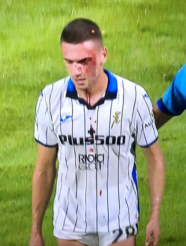 Atalanta's Merih Demiral suffers vile cut to face as blood pours down shirt
