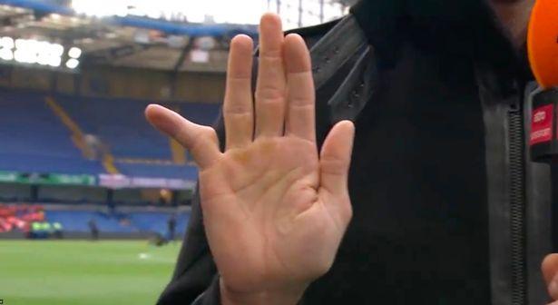 Green's finger shocked the Chelsea legend