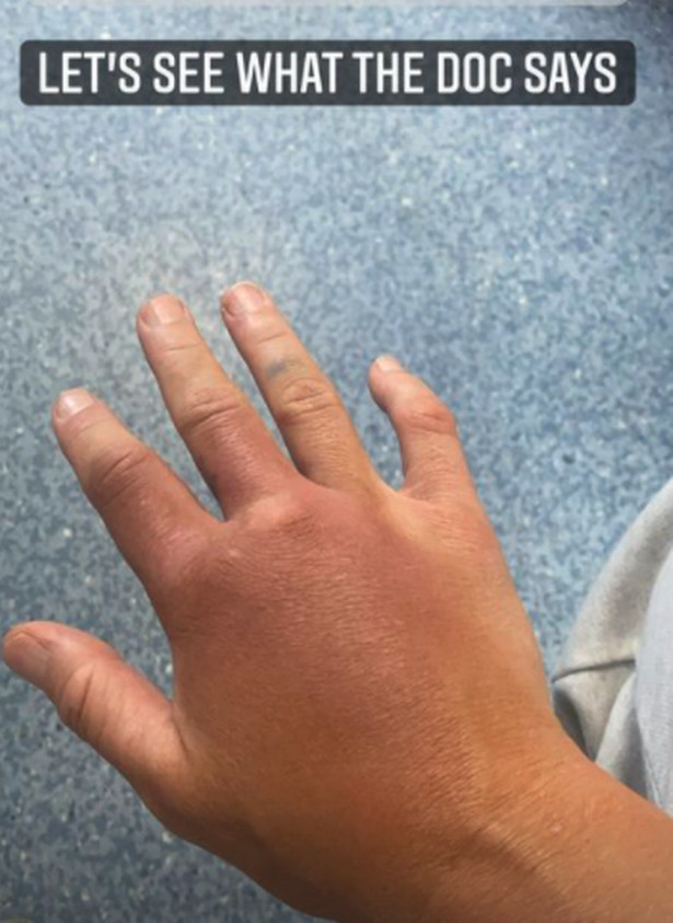 Bridges injured her hand in her most recent bout