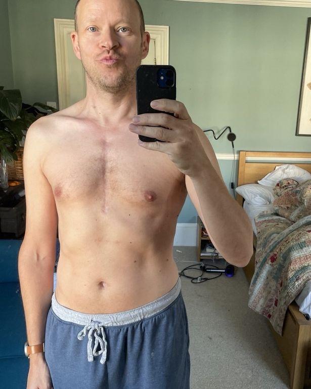 Robert had to undergo emergency heart surgery
